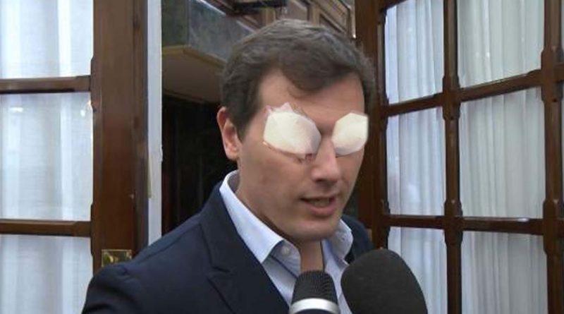 Un oftalmólogo extrae dos españoles de los ojos de Albert Rivera